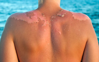 The Top Skin Problems Caused by the Sun (and What You Can Do About Them)