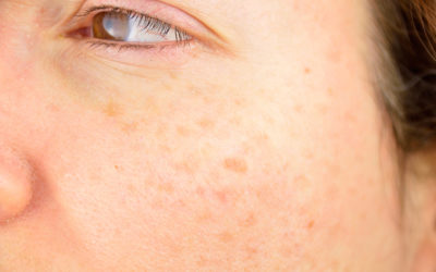Got Sun Spots? Here's What They Are and How to Fix Them