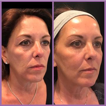 Liquid Face Lift | Clarity Medical Aesthetics