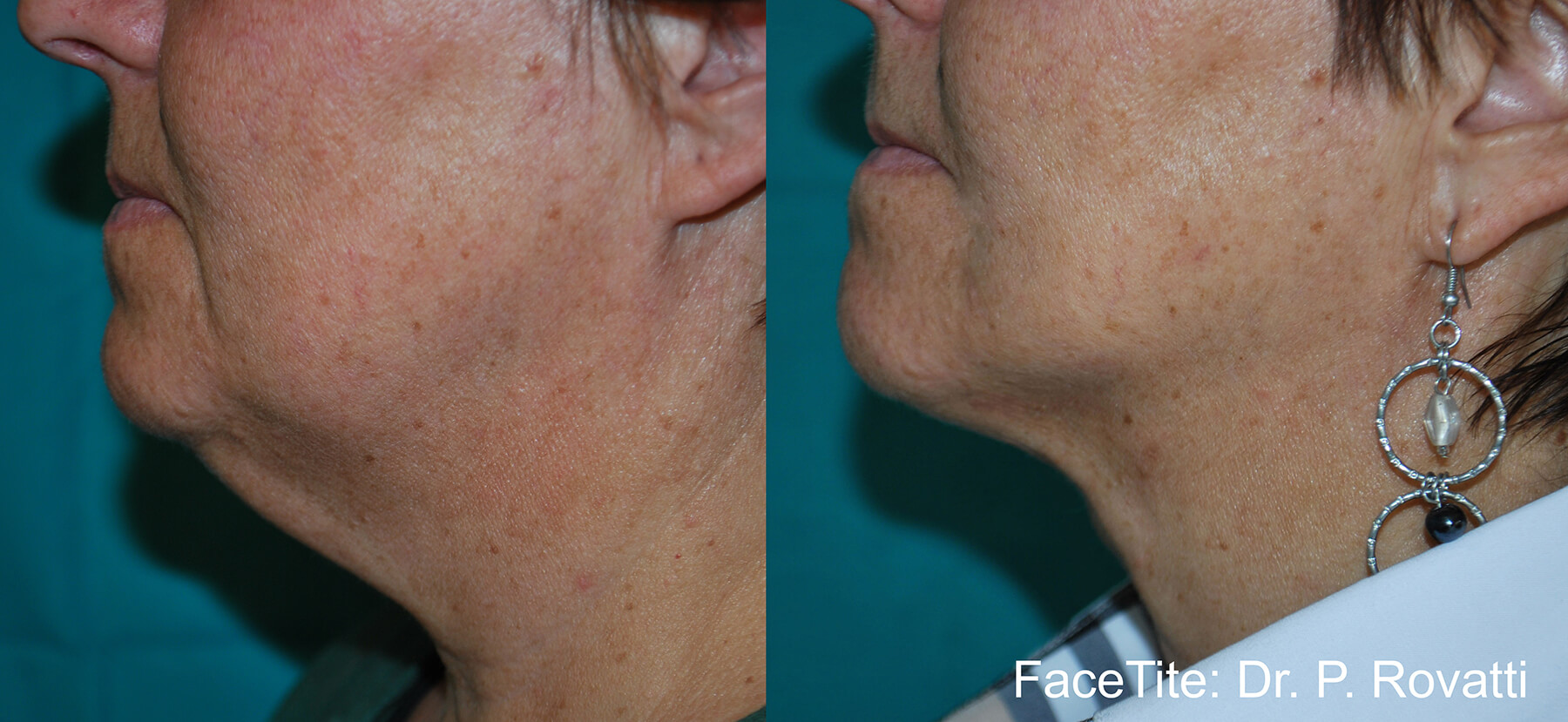 Restore volume loss with dermal fillers | Clarity Medical